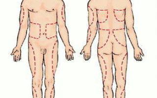 Какие бывают осложнения от инъекций?
