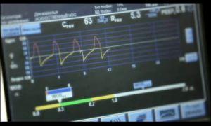 Когда проводится искусственная вентиляция легких?