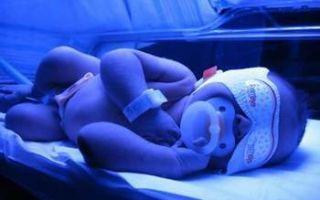 Как вылечить желтуху новорожденных?