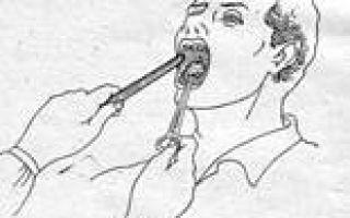 Как проводить обработку полости рта?