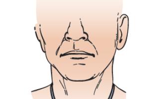 Чем важен уход за трахеостомой?