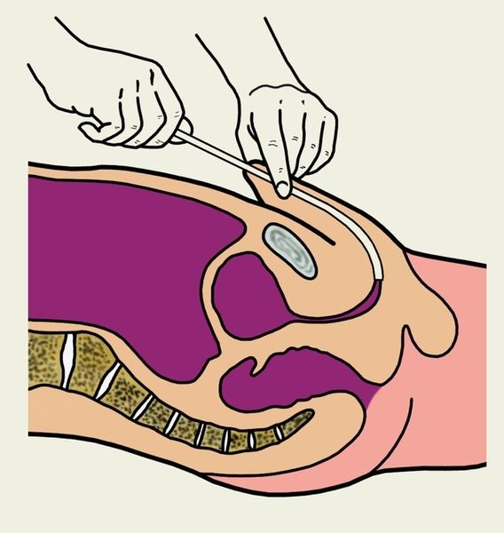 Катетеризация мочевого пузыря у мужчин, техника