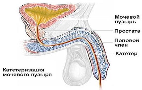 Катетеризация мочевого пузыря у женщин, техника