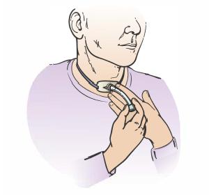 Уход за трахеостомой, алгоритм