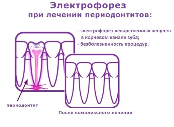 Трансканальный электрофорез