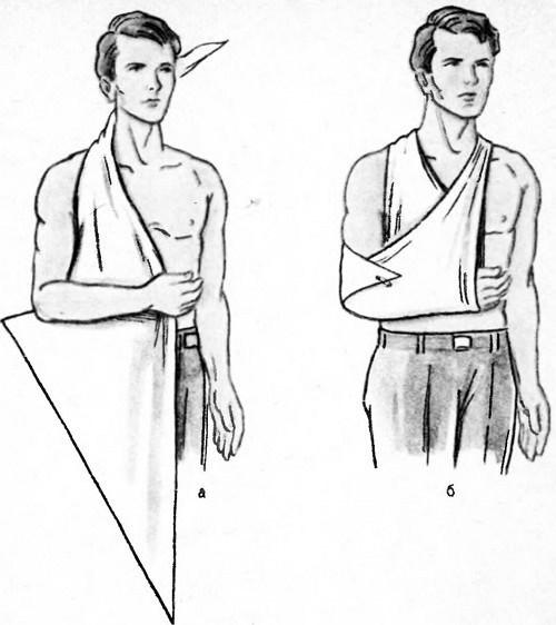 Повязка Дезо, техника наложения в картинках