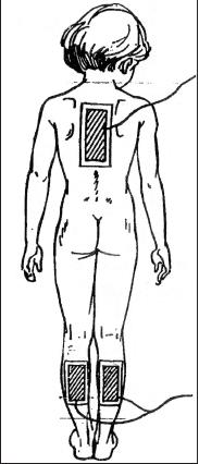 Гальванизация и лекарственный электрофорез, методика