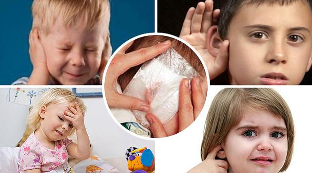 Техника постановки согревающего компресса на ухо ребенку