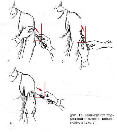 Техника выполнения внутрикожной инъекции