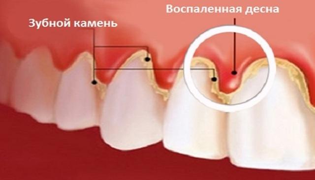 Диатермокоагуляция в стоматологии