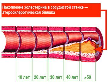 Сестринский процесс при стенокардии (ИБС)