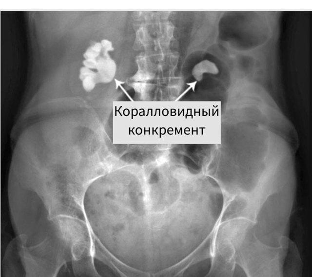 Подготовка к рентгенографии почек, алгоритм