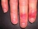 Помощь при отморожениях: как оказать первое медицинское лечение пострадавшему при переохлаждении или ожоге, его степени и симптомы